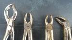 Родопски истории: Родопчанин отива на зъболекар…